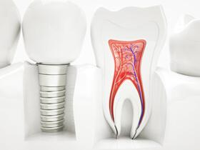 最新の技術を学んでいる歯科医師のみが治療