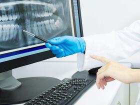 歯科用CTを使用した正確な診断
